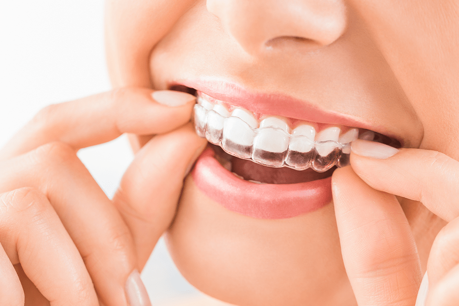 Coverage-Over-Orthodontic-Care