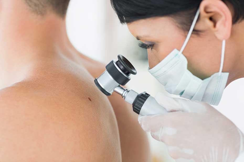 skin-cancer-and-men